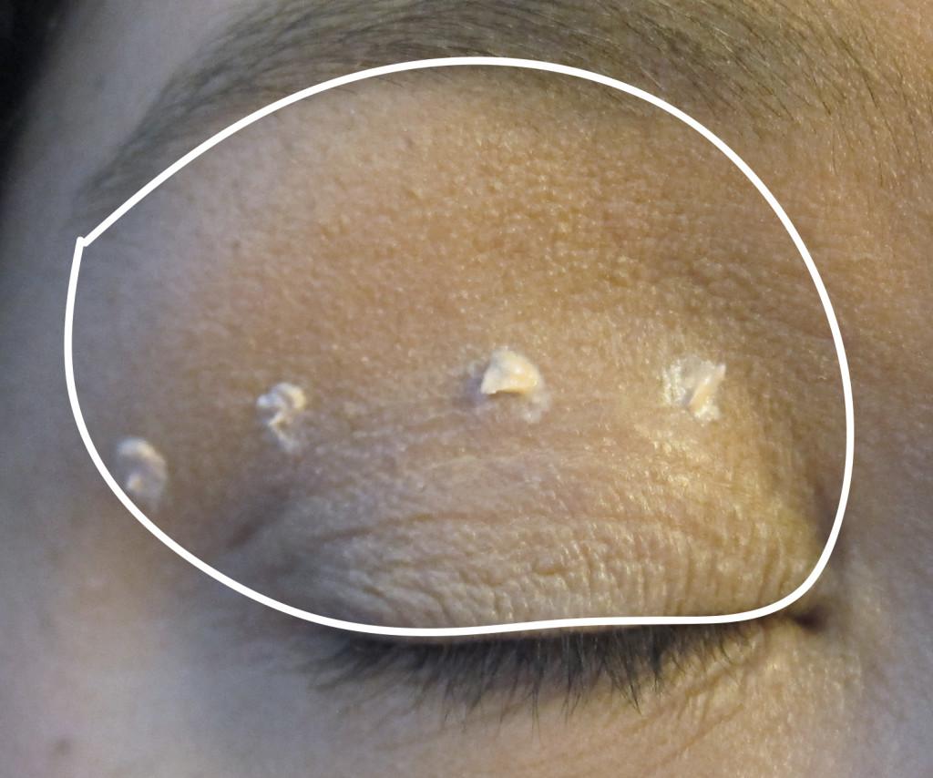 eyelidzone
